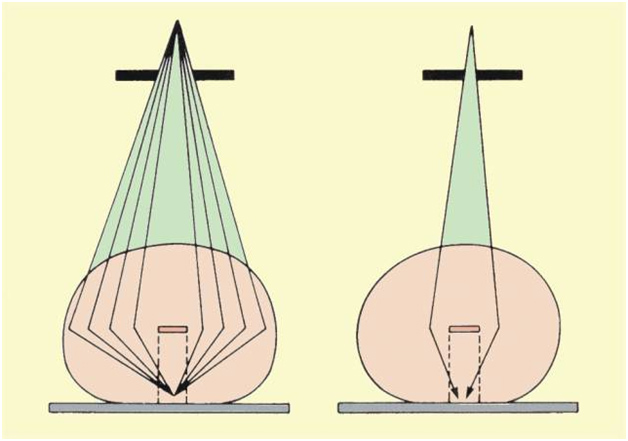 Contrast Improvement by Reducing X-Ray Beam Size