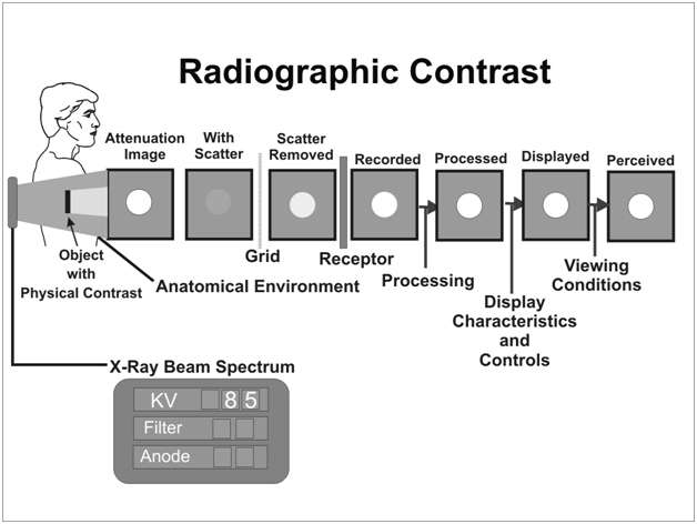 Factors That Affect Radiographic Contrast